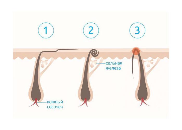 Фото: Виды вросших волосков